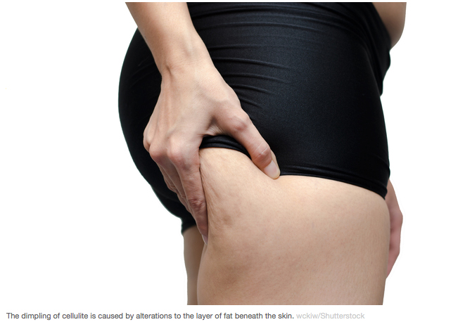Could Cellulite be good for you_